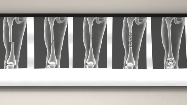 Bones can be broken in many different ways, including a straight break, a diagonal break, a crushing break, when the bone is broken into many pieces or fragments, and when bones are driven together and crushed