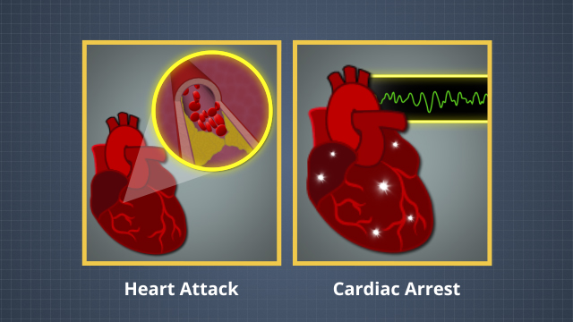 A heart attack is caused when blood is blocked from flowing in a blood vessel to the heart. Cardiac arrest occurs when a heart's electrical system malfunctions and causes the heart to beat irregularly.