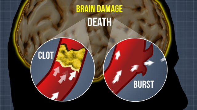 Strokes can quickly cause serious brain damage. Two common causes are clots and burst blood vessels.