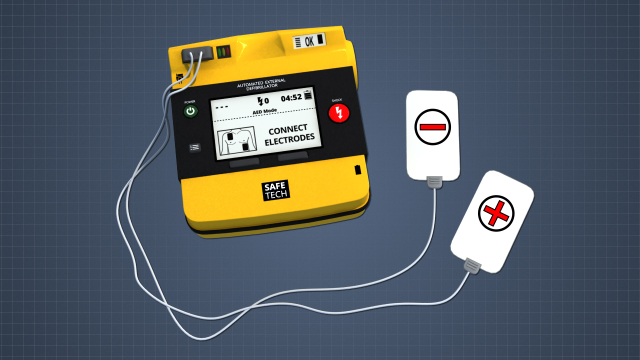 An AED will include the primary machine, cables, and two pads. One pad will be negative and one pad will be positive.