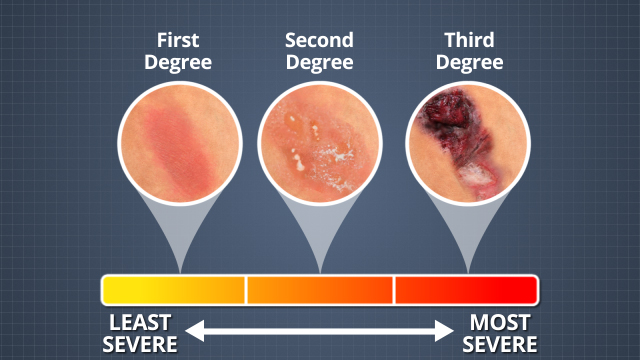 One way burns are categorized is by their severity. First degree burns are the least severe; second degree burns are more severe; and third degree burns are the most severe