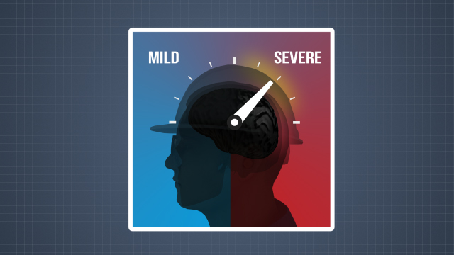 Some head injuries cause a concussion, an injury to the brain, and these can range from mild to severe