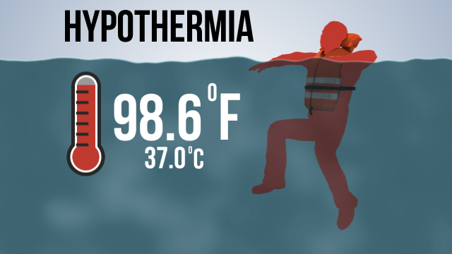 "In the water, the body loses heat 25 times faster than in air at the same temperature. A condition known as ""hypothermia"" can set in when a person's core body temperature drops from 98.6 °F (37 °C) to below 95 °F (35 °C)."