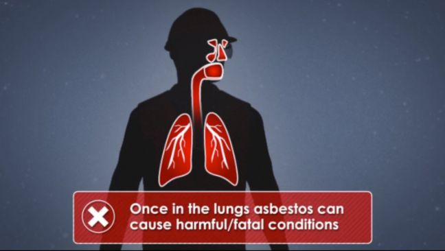 Asbestos in Lungs Image